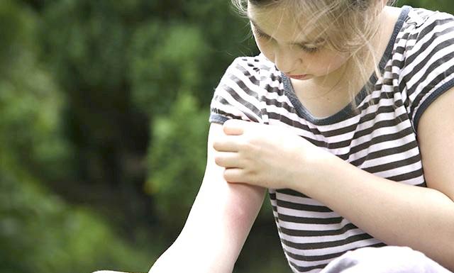 Як усунути свербіж і запалення від комариного укусу