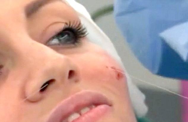 Ляльковий фейсліфтінг позбавляє від скальпеля хірурга: Особа пацієнток обробляється за допомогою спеціальних ниток і голок, тобто зшивається, зовсім як лялькове. Процедура займає всього півтори-дві години,