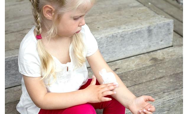 Лишай: дивіться в обидва: У поліклініці лікар, оглянувши дитину, сказав: «Схоже, це трихофития. Зробимо аналізи - стане остаточно ясно ». І додав уже м'якше: «Так