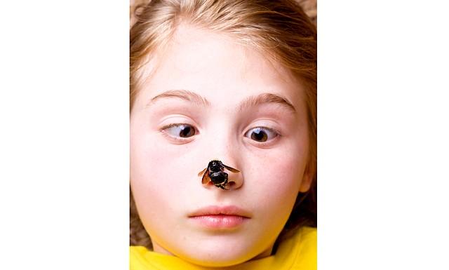 Бджоли, кліщі та воші: швидка допомога при укусах комах